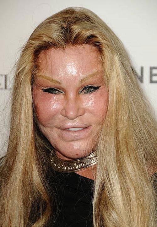 """Jocelyn Wildenstein sau khi chi hàng chục tỷ đồng vào phẫu thuật thẩm mỹ gây """"chấn động"""" thế giới vì gương mặt méo mó, cặp mắt xếch như những chú mèo."""