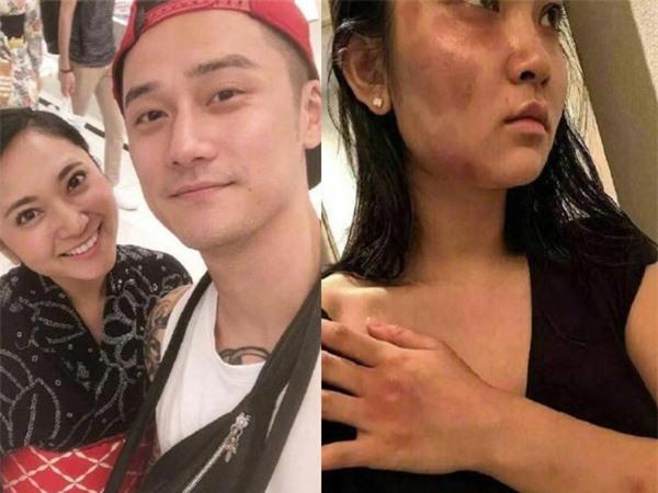 Những sao nam Hoa ngữ vướng scandal bạo hành vợ, bạn gái: Tưởng Kình Phu bị tẩy chay, riêng nam thần này vẫn được tha thứ vì quá đẹp trai  - Ảnh 10