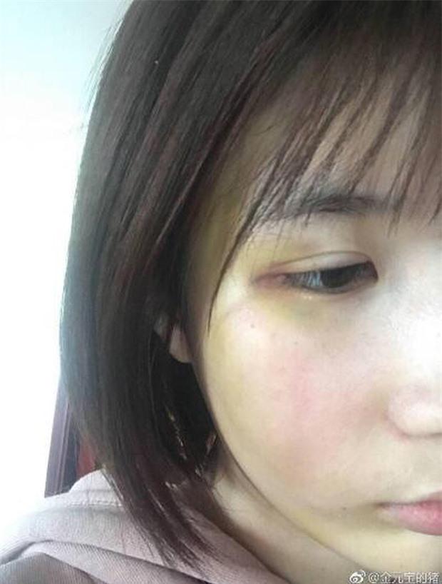 Những sao nam Hoa ngữ vướng scandal bạo hành vợ, bạn gái: Tưởng Kình Phu bị tẩy chay, riêng nam thần này vẫn được tha thứ vì quá đẹp trai  - Ảnh 6