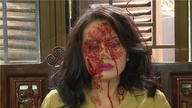 Diễn viên Ngọc Lan: Tôi quá hốt hoảng, sợ hãi trước khuôn mặt bị tạt axit của mình trong phim - Ảnh 4.