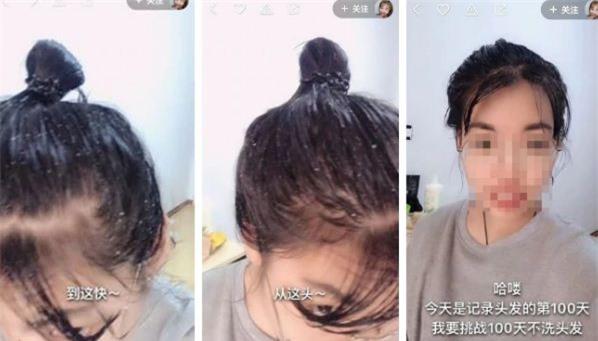 Trải qua 100 ngày, mái tóc của gái trở nên bết dính và gàu xuất hiện dày đặc.