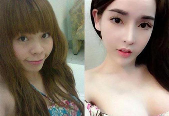 """3 hotgirl MXH chi tiền tỉ """"đập mặt xây lại"""", sinh con ra càng lớn càng đẹp lạ kì - 1"""