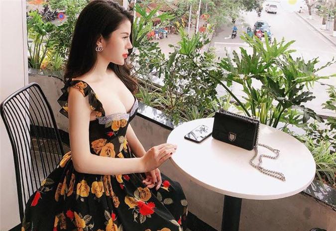 """3 hotgirl MXH chi tiền tỉ """"đập mặt xây lại"""", sinh con ra càng lớn càng đẹp lạ kì - 16"""