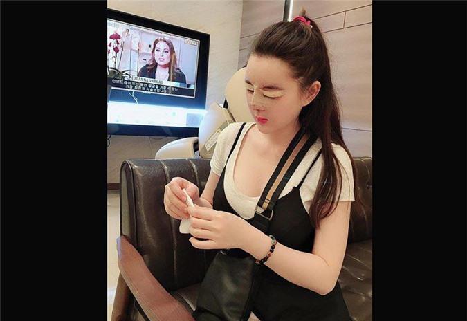 """3 hotgirl MXH chi tiền tỉ """"đập mặt xây lại"""", sinh con ra càng lớn càng đẹp lạ kì - 3"""