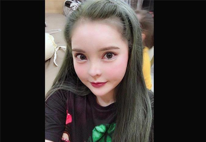 """3 hotgirl MXH chi tiền tỉ """"đập mặt xây lại"""", sinh con ra càng lớn càng đẹp lạ kì - 9"""
