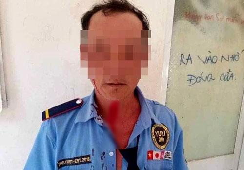 TPHCM: Nhắc nam thanh niên đeo khẩu trang, người bảo vệ bị đánh bầm mặt
