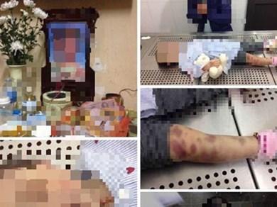 Hà Nội: Bé gái 3 tuổi nghi bị mẹ và cha dượng bạo hành đến tử vong
