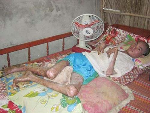 """""""Người rắn"""" Lâm Sang nằm liệt giường với căn bệnh quái ác."""