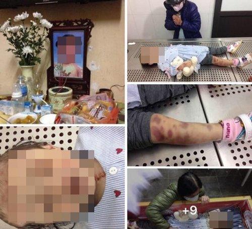 Khởi tố vụ án bé 3 tuổi bị bạo hành đến tử vong