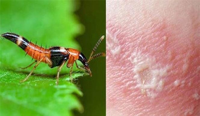 1001 thắc mắc: Loài kiến nào có nọc độc gấp 12 lần nọc rắn hổ mang? - ảnh 1