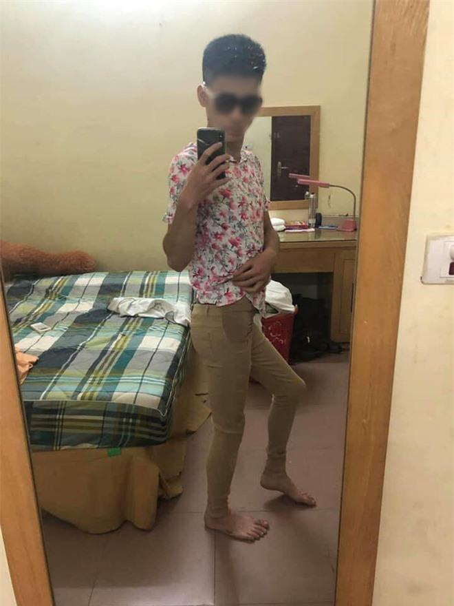 Nhìn chàng trai mặc bộ quần áo bị khách