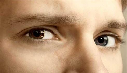 Tại sao người có hai màu mắt khác nhau? - ảnh 1