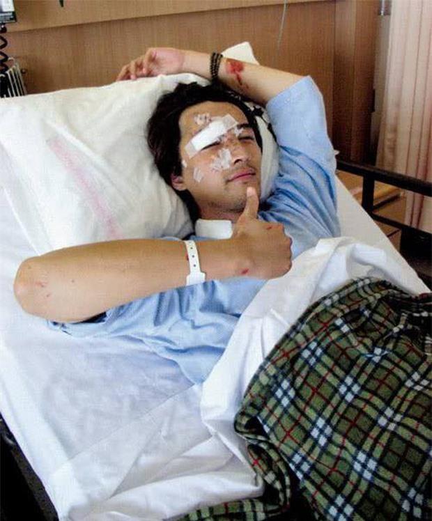 Hồ Ca: Ám ảnh tai nạn thảm khốc phải khâu 100 mũi trên mặt