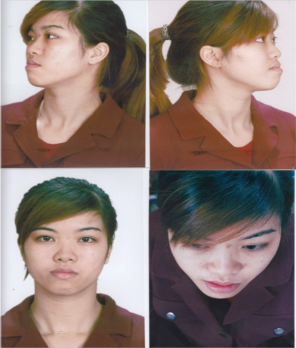 phau-thuat-tham-my-94-1-ngoisao.vn-w580-h682 4