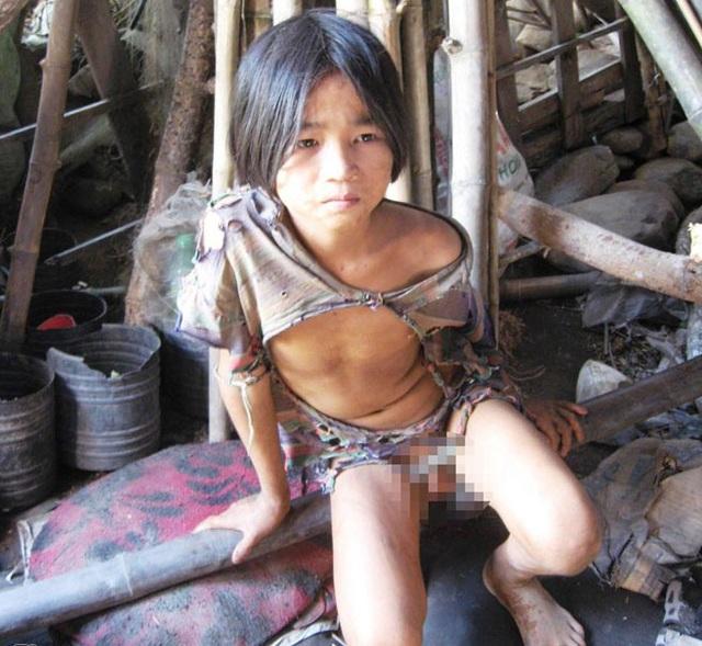Cậu bé người rừng chỉ mặc độc một chiếc áo suốt 5 năm trời.Cậu bé người rừng chỉ mặc độc một chiếc áo suốt 5 năm trời.
