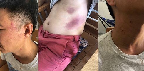 Ông Phạm Quốc Hùng tố cáo bị đại úy Phạm Quốc Hưng đánh đập trong thời giam bị giữ tại trụ sở CA thị trấn Dương Đông.