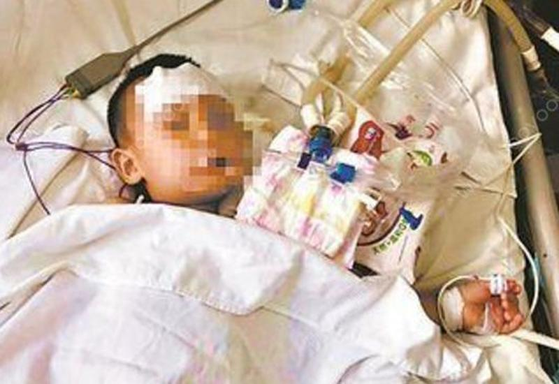 Em bé 5 tuổi bị ngộc độc do ăn trứng nấu với cà chua xanh