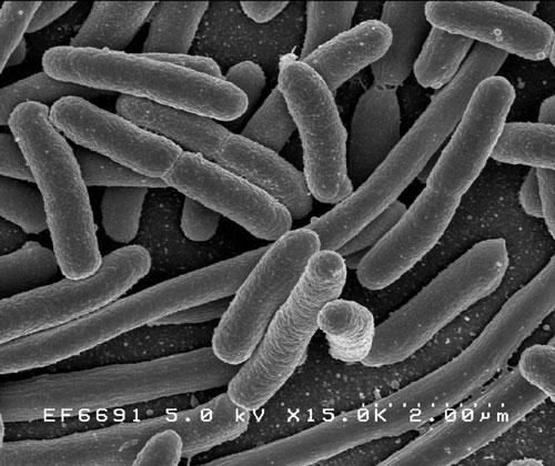 Vi khuẩn là sinh vật sống đầu tiên trên Trái Đất. Ảnh: NIAID.