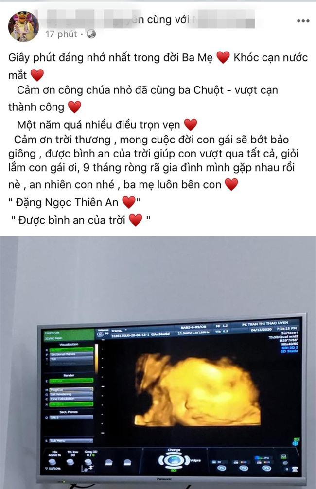 """""""Người đàn ông Việt Nam đầu tiên mang thai"""" sinh con thành công, vợ tiết lộ những thông tin mới nhất - Ảnh 1."""