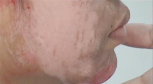 Sưng phù, lở loét mặt do sử dụng sản phẩm làm trắng da trên mạng - Ảnh 2.
