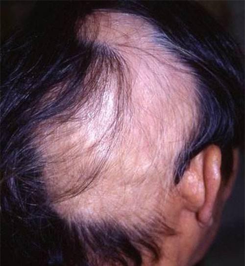 14 căn bệnh kỳ lạ nhất trên thế giới - 10