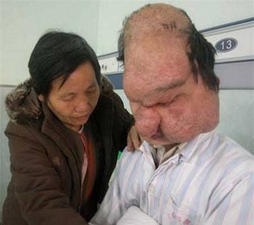 14 căn bệnh kỳ lạ nhất trên thế giới - 3