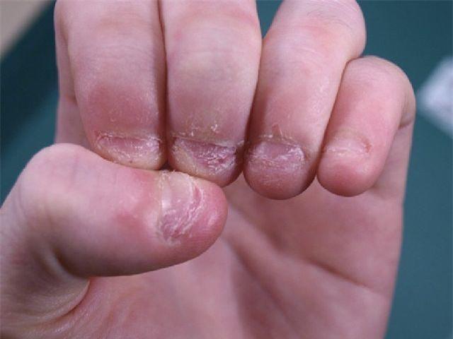 Trẻ thường xuyên cắn móng tay dễ nhận 3 hậu quả này, cha mẹ cần loại bỏ ngay - Ảnh 2.