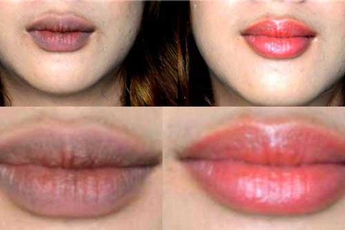 Sở hữu một đôi môi căng mọng và hồng hào là niềm mơ ước của hết thảy chị em phụ nữ.