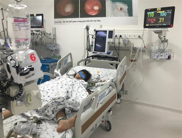 Đi nhổ răng sâu, bé gái bị răng rơi vào phế quản gây tắc đường thở - Ảnh 2.