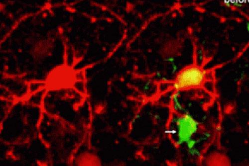 Tế bào não bộ dọn 'rác thải' trong hệ thần kinh như thế nào?