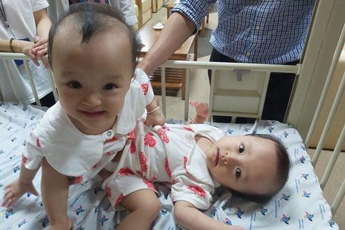 Hai bé gái song sinh dính nhau Trúc Nhi - Diệu Nhi. (Ảnh: Bệnh viện Nhi đồng Thành phố)
