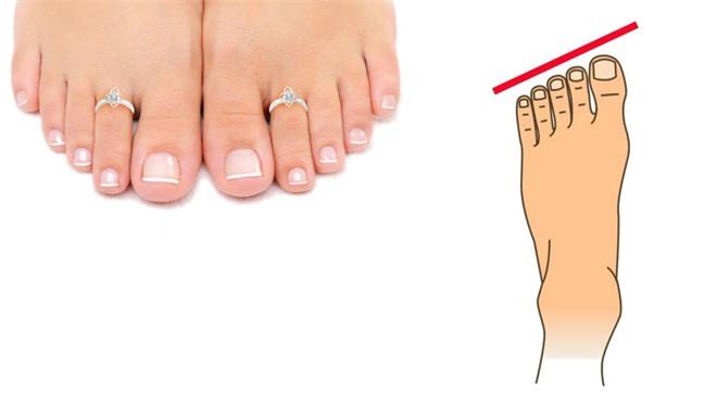 Ngón cái dài hơn những ngón chân khác giàu có