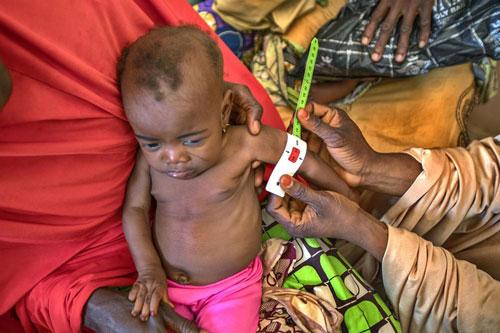 Gần 1/4 trẻ em dưới 5 tuổi trên toàn cầu bị còi cọc.