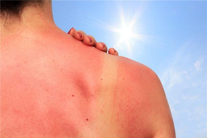 Vết cháy nắng có thể tồn tại bao lâu trên da và biện pháp giúp da lành nhanh hơn - Ảnh 1.