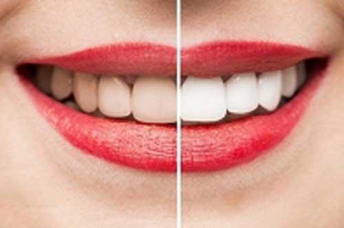 Những cách giúp làm trắng vết ố vàng trên răng hiệu quả ngay tại nhà