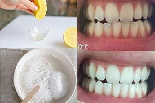 Không bao giờ đi lấy cao răng chỉ cần ngậm thứ này 2 phút, răng trắng như bọc sứ ngay