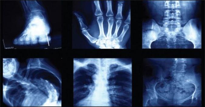 Xét nghiệm X-quang rất nhanh chóng