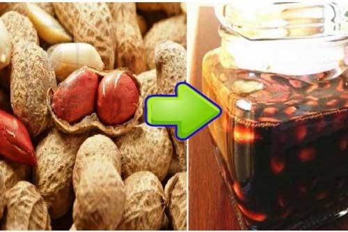 Lạc ngâm giấm - Bài thuốc thần kỳ chữa dứt điểm bệnh cao huyết áp, giảm mỡ trong máu