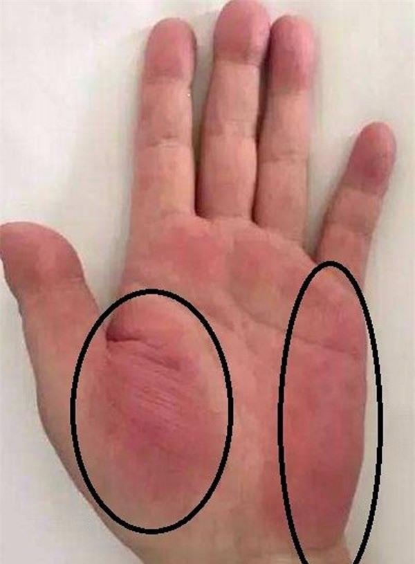 3 dấu hiệu trên tay cảnh báo sớm ung thư gan, có 1 trong 3 cũng nên kiểm tra sớm - Ảnh 3