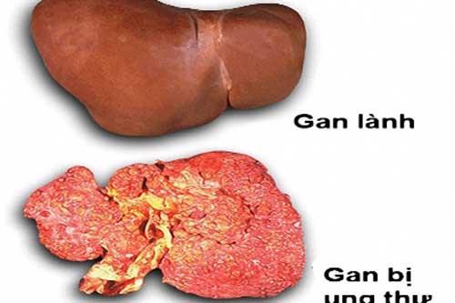 Ung thư gan rất nguy hiểm bạn cần chú ý dấu hiệu ban đầu nhận biết chúng.