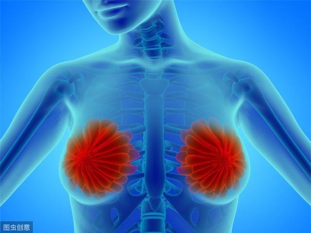6 dấu hiệu ban đầu của ung thư vú - Ảnh 2