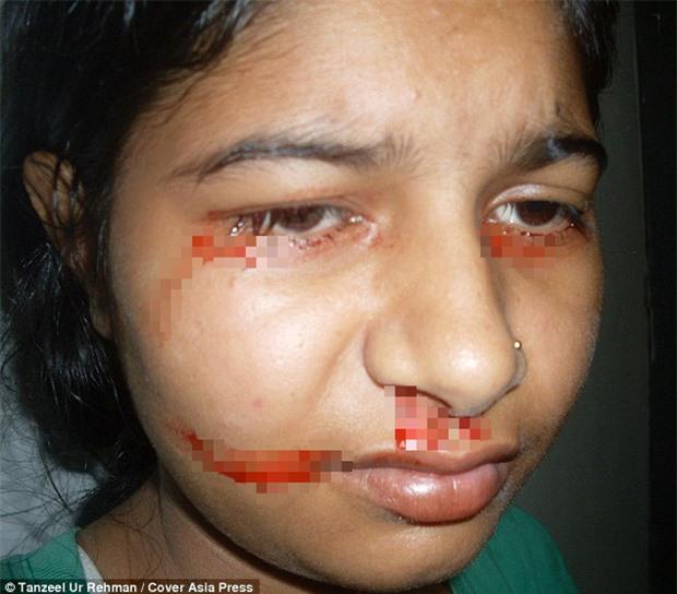 Giải mã bí ẩn của haemolacria: Chứng bệnh khiến những cô gái Ấn Độ khóc ra máu - Ảnh 3.