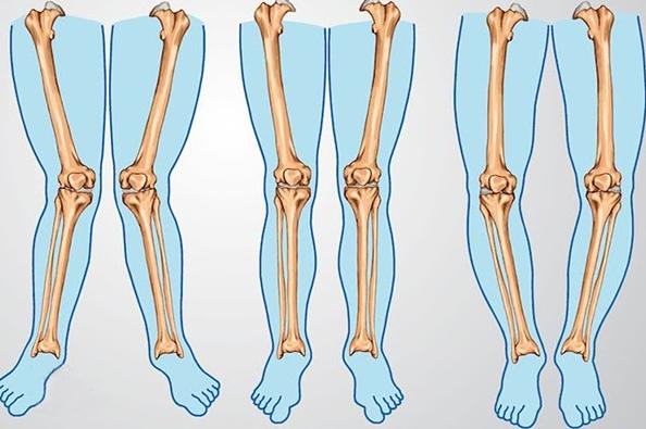 Các dạng chân vòng kiềng thường gặp ở trẻ nhỏ.