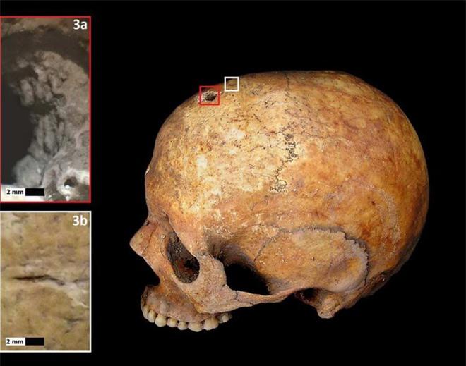 Lỗ hổng trên hộp sọ và các rãnh nhỏ gây ra bởi thủ thuật trepanation