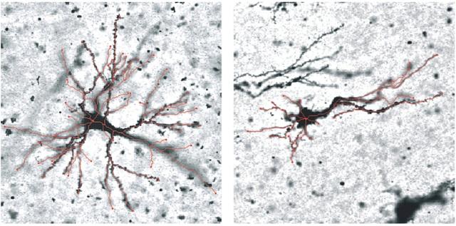 Nếp nhăn trên não hình thành như thế nào?