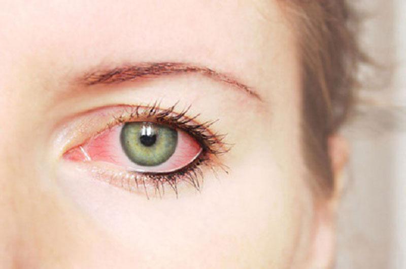 Mắt đỏ là dấu hiệu cảnh báo mắt bị kích ứng, thành mạch máu sưng phồng. Ảnh minh họa.