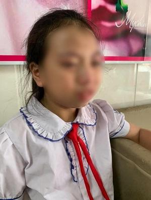 Hà Giang: Đình chỉ công tác 3 tháng giáo viên đánh học sinh