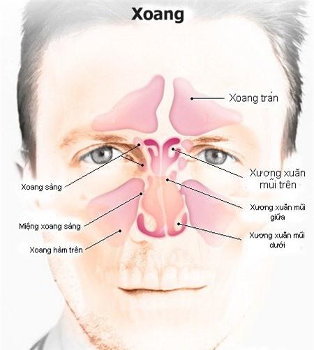 Điểm mặt 5 nguyên nhân gây bệnh viêm xoang thường gặp nhất - Ảnh 3.