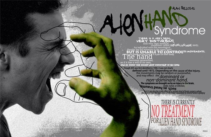 Hiện tượng lạ về 'bàn tay người ngoài hành tinh' cho thấy bàn tay hoạt động độc lập với suy nghĩ của chủ nhân