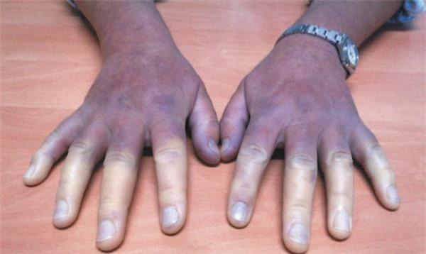 Bàn tay của người phụ nữ khi nhiễm bệnh